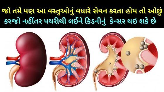 avoid food for kidney stone in gujarati